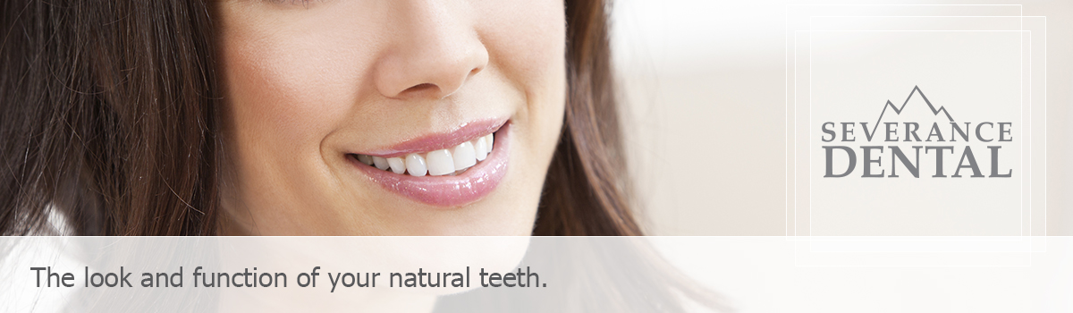 Attractive female, The look and function of your natural teeth.