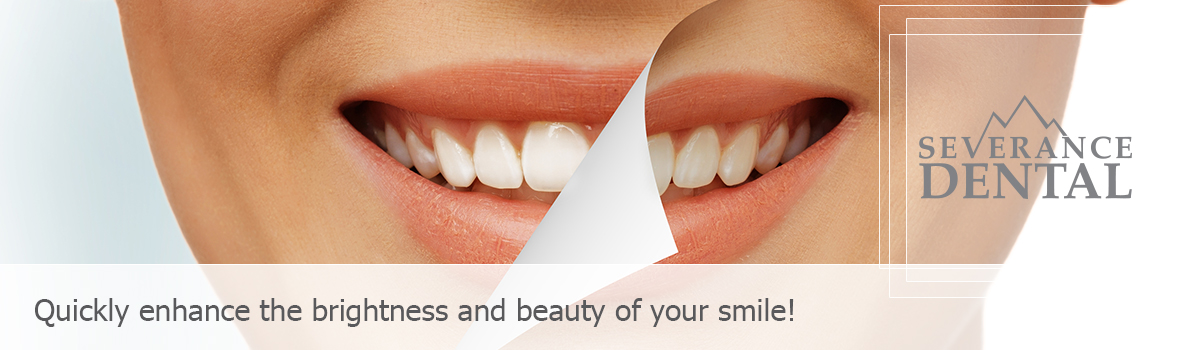 Smile whitening concept, Quickly enhance the brightness and beauty of your smile!