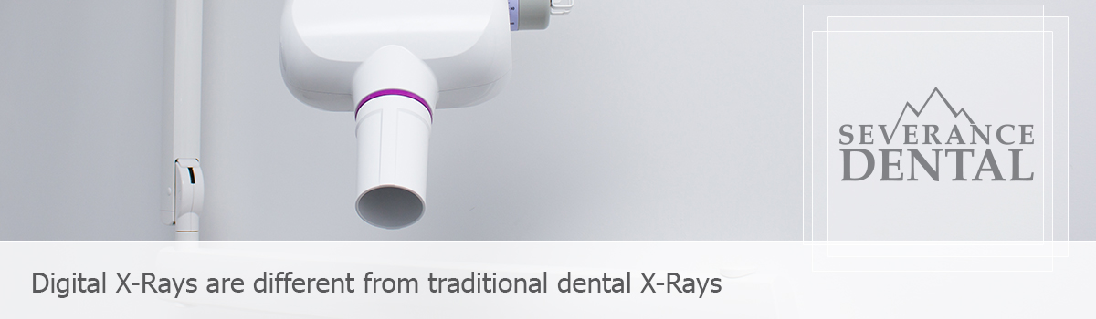Dental x-ray, Digital X-Rays are different from traditional dental X-Ray.